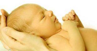 زردی نوزاد